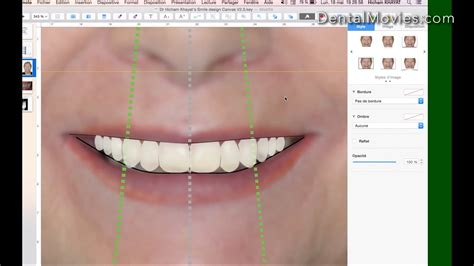 How To Do A Comprehensive Smile Design Using Keynote Dental Movies Dentistry And Digital Smile Design Powerpoint Template