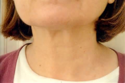 necks on pelleve and my neck no nonsense beauty blogno nonsense