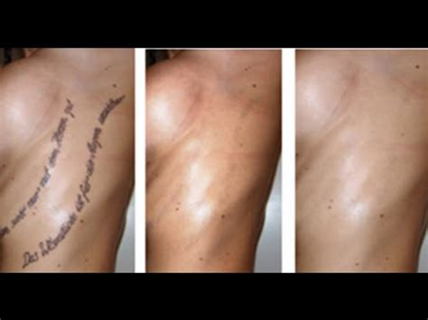 laser tattoo removal infection symptoms how to remove tattoos without laser treatment