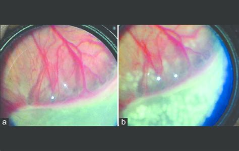 fundus changes documenting fundus changes in retinopathy of prematurity