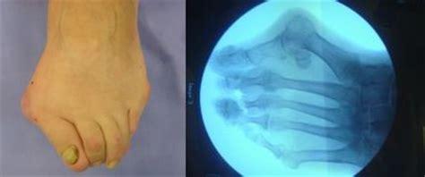 dolore arco plantare interno lesiones arco interno
