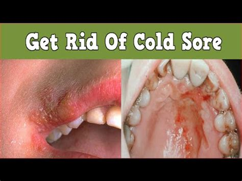 Detox Cant Get Rid Of Herpes by Get Rid Of Cold Sore What Is A Cold Sore Cold Sores On