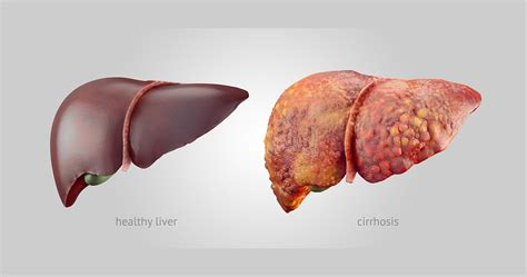 Stewart Has Liver Disease 2 by Liver Detox Flush Reversing Cirrhosis Health