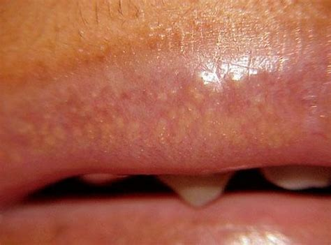 spot on treatment white spots on pictures treatment and causes