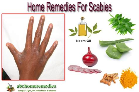 Scabies Home Treatment by Home Remedies For Scabies