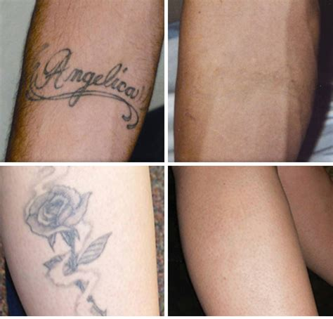 laser removal of tattoos removal exhale rejuvenation