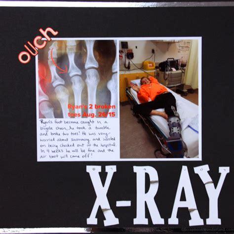 scrapbook layout broken arm scrapbooking x rays and broken bones