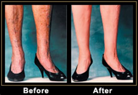 tattoo cover up veins makeup for covering varicose veins saubhaya makeup