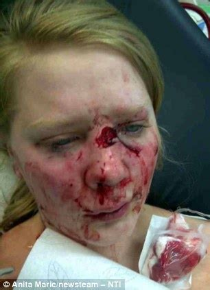 Cheap Kitchen Knives 13 year old girl attacked by own puppy madmikesamerica