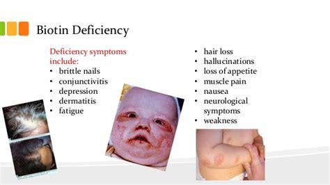 h protein deficiency vitamin b7 biotin