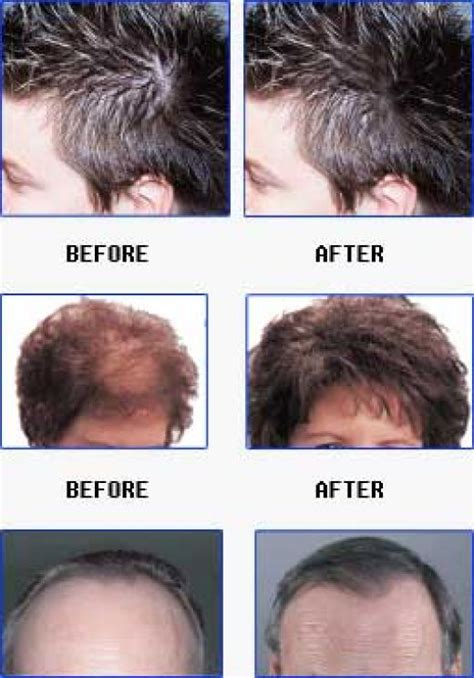 thyroid pattern hair loss meganosborn hair loss leave in conditioner 6 causes