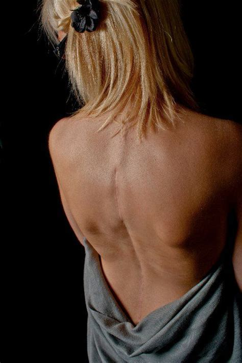 brave girl documents intense treatment for scoliosis that began aged 9 scars reflect the strength of the warrior heart inside and
