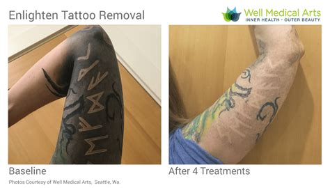 pico tattoo removal removal in seattle using pico technology at well