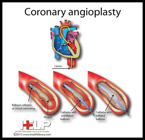 coronary angioplasty with or without stent implantation coronary angioplasty heart pinterest
