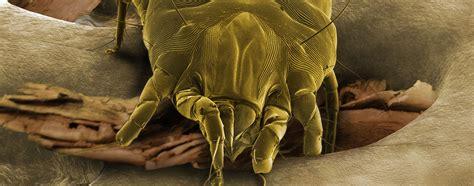 acaro materasso acari della polvere prevenzione e rimedi