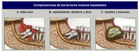 cuanto tarda en salir una muela juicio clinica dental ballester 191 problemas con las muelas