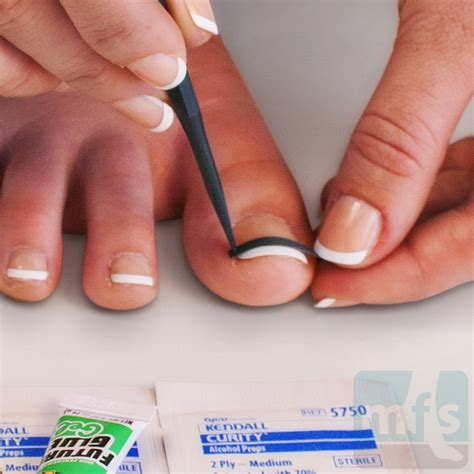 how to cure an ingrown toenail infection