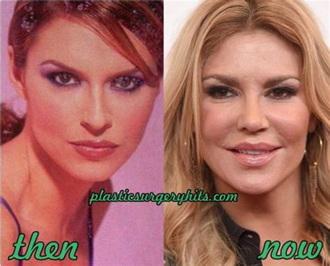 brandi glanville lipstick brandi glanville plastic siurgery before and after