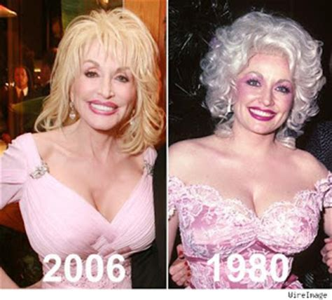 Dolly Parton Has Named Cans Shock Awe by Chatter Busy Did Dolly Parton Implants