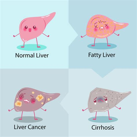 Counteract Weakness Liver Cancer Detox by Reduce The Risks Of Liver Disease Alpha Lipoic Acid
