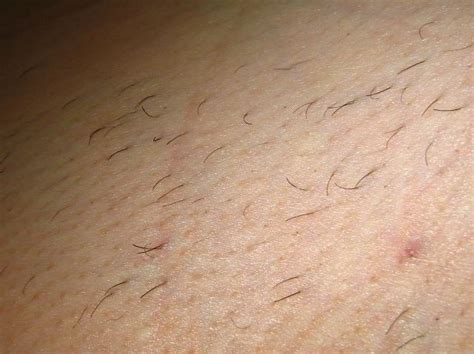photos of pubic areas after waxing pubic hair removal pictures hairstylegalleries com