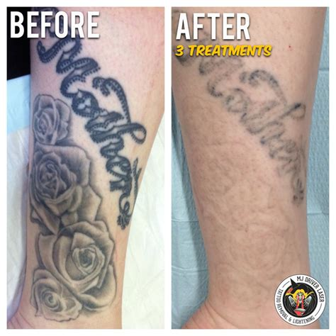 mj driver laser tattoo removal amp lightening sydney in