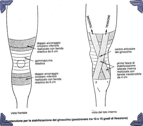 collaterale interno ginocchio distorsione ginocchio
