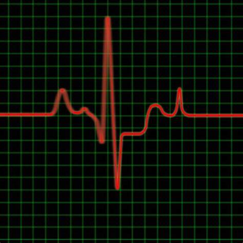 has ebay s pulse finally stopped 171 wholesale help