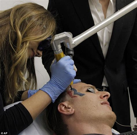 tattoo removal on face pictured with mitt romney begins laser