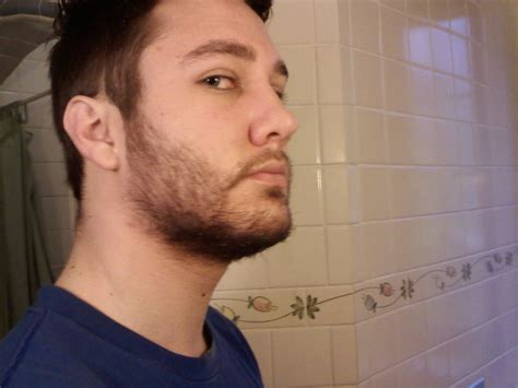 rogaine success stories men thread closed minoxidil f a q and experiences from