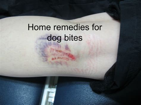 house dog bite home remedies for dog bites