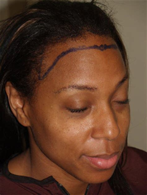 hairline lowering african american female hairline advancement new york hairline lowering