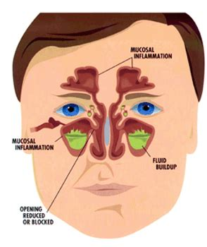 sinus infection mucus color about sinus frisco ent