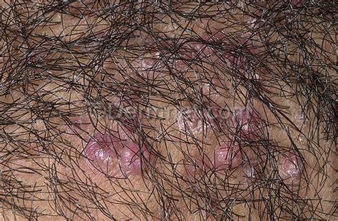 hidratar el cuero cabelludo tricolog 205 a anatom 205 a tipos de cabello cuero cabelludo