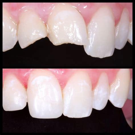 composite bonding comprehensive family dental