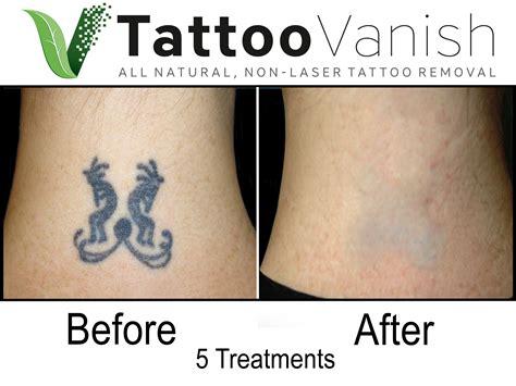 miami tattoo removal best removal in miami all