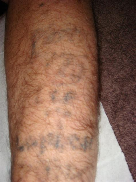 tattoo removal kent removal in kent julie gamble advanced skin