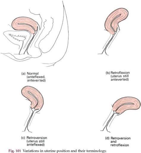 normal anteflexed anteverted retroflexed retroverted