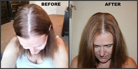 before and after rogaine for women pictures rogaine after hair dye hairsstyles co