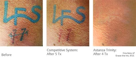 laser tattoo removal after astanza removal before after photos