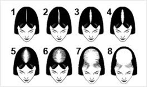female pattern hair loss stages hair growth baldness treatment for black men stop your
