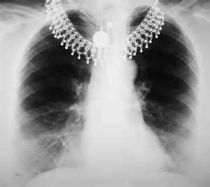 Diagnosis Interpreting The Shadows x shows shadow on lung what doctors want you to