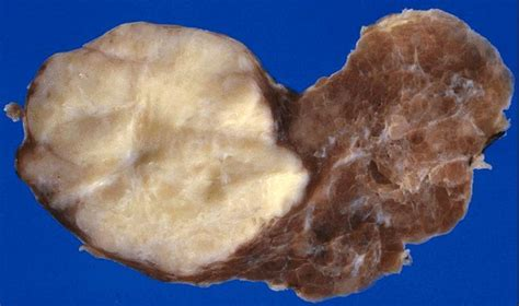 Ultimobranchial Pathology Outlines by Anabible Dr Michels Carcinome Muco 233 Pidermo 239 De Scl 233 Rosant Avec 233 Osinophilie Impression