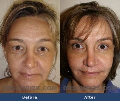 45 year old woman before and after surgery before and after photo of a 45 year old female patient who