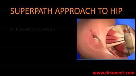 find a physician superpath hip replacement superpath hip replacement youtube