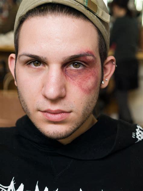 black eyes black eye by guirnou on deviantart