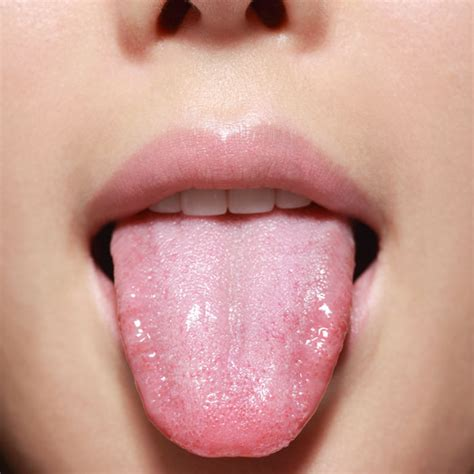 white tongue and black bump white tongue dry mouth driverlayer search engine