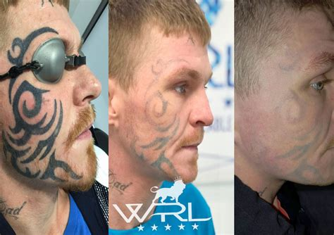 face tattoo removal before and after laser removal whiteroom laser ltd