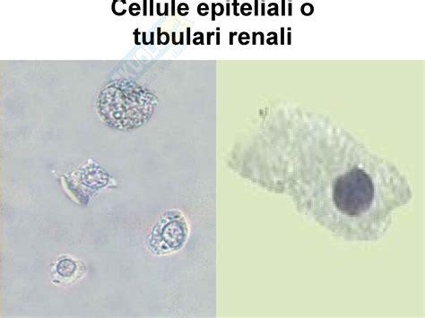 sedimenti nelle urine il sedimento urinario parte 2