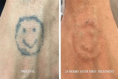 tattoo removal stages before after photos laser tattoo removal